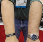 Using actual chest seals in practice is the gold standard for realistic training, but comes at a price both in cost and discomfort. Arm on left shows what happens when chest seal is applied and removed from volunteer's forearm. Arm on right is unaffected by placement of a Practi-seal, which is designed for ease of placement and removal.